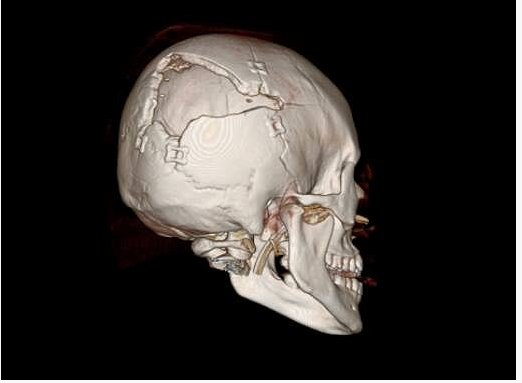 A scan of Jaclyn Burden's skull after she survived being shot through the arm and the head.